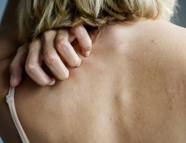 skin rashes from food